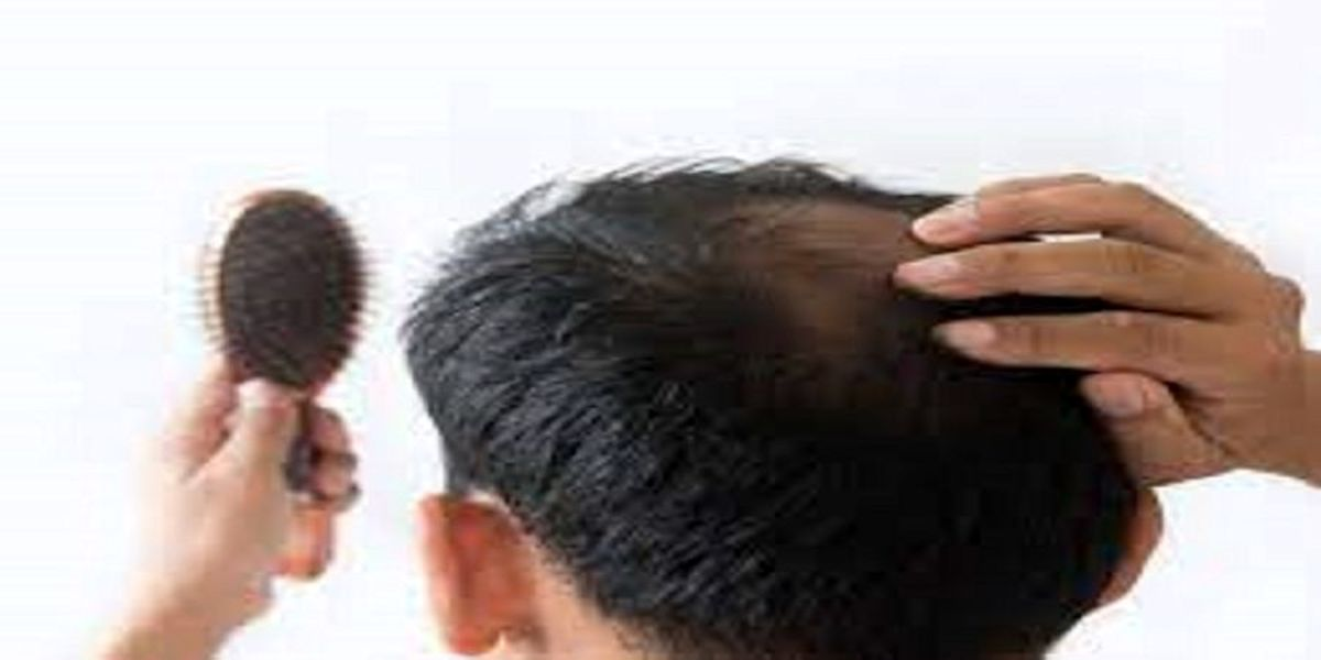 فوری: ریزش مو نشانه چه بیماری جدی است؟
